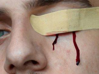De 7 meest voorkomende oogletsels
