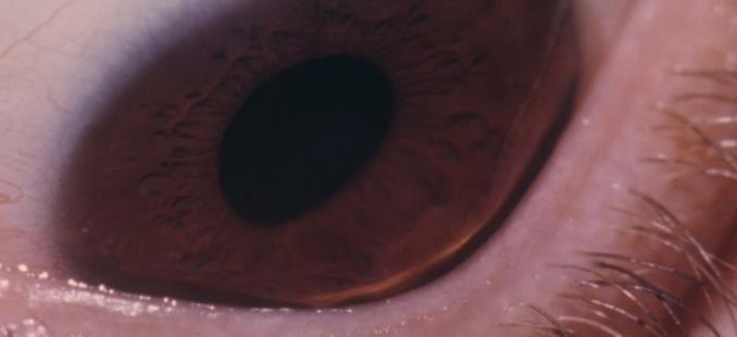 wat is keratoconus voor oogaandoening